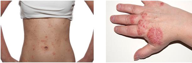 Argan Oil for Eczema
